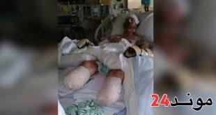 رجل يفقد أطرافه الأربعة بعد ان قام كلبه بلعقه
